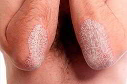Редермис лечит различные кожные заболевания