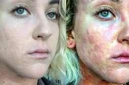 Псоритин возвращает коже здоровый вид.